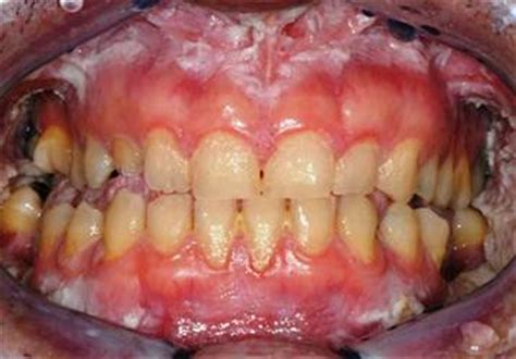 Oral Infection by Staphylococcus Aureus in Patients